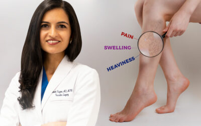 What Happens During A Vein Treatment Consult