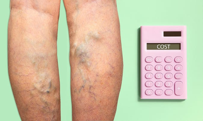 Try our Vein Treatments Cost Calculator $$$