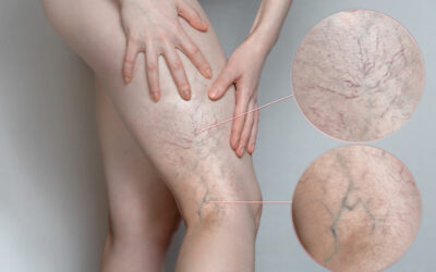 What is venous insufficiency