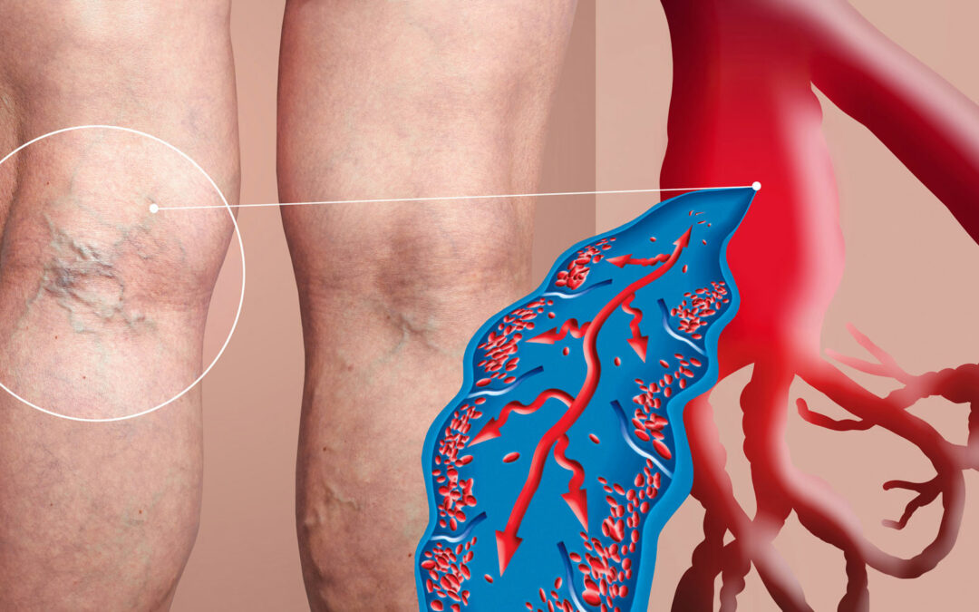 What Is The Best Treatment For Varicose Veins
